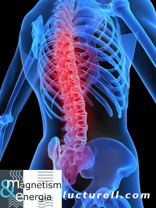 Douleurs à la colonne vertébrale